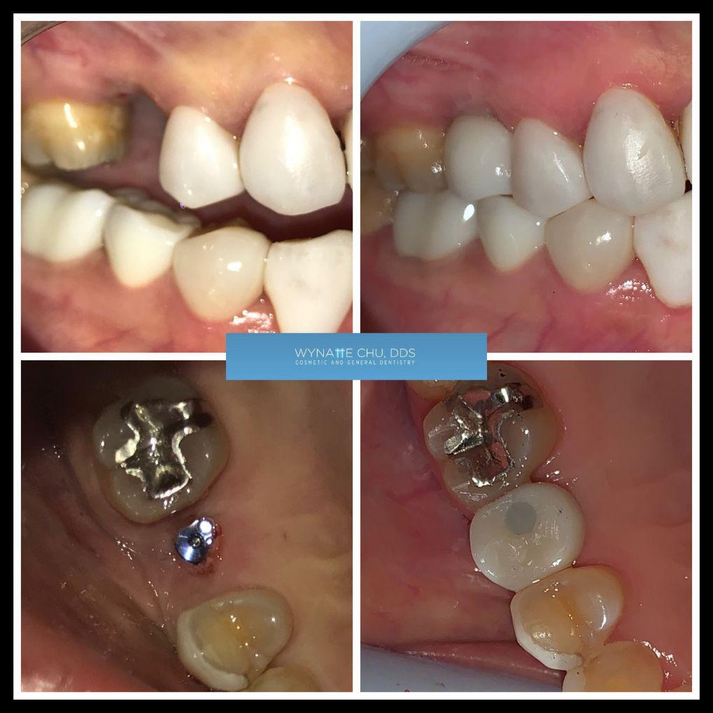 dental implant before and after