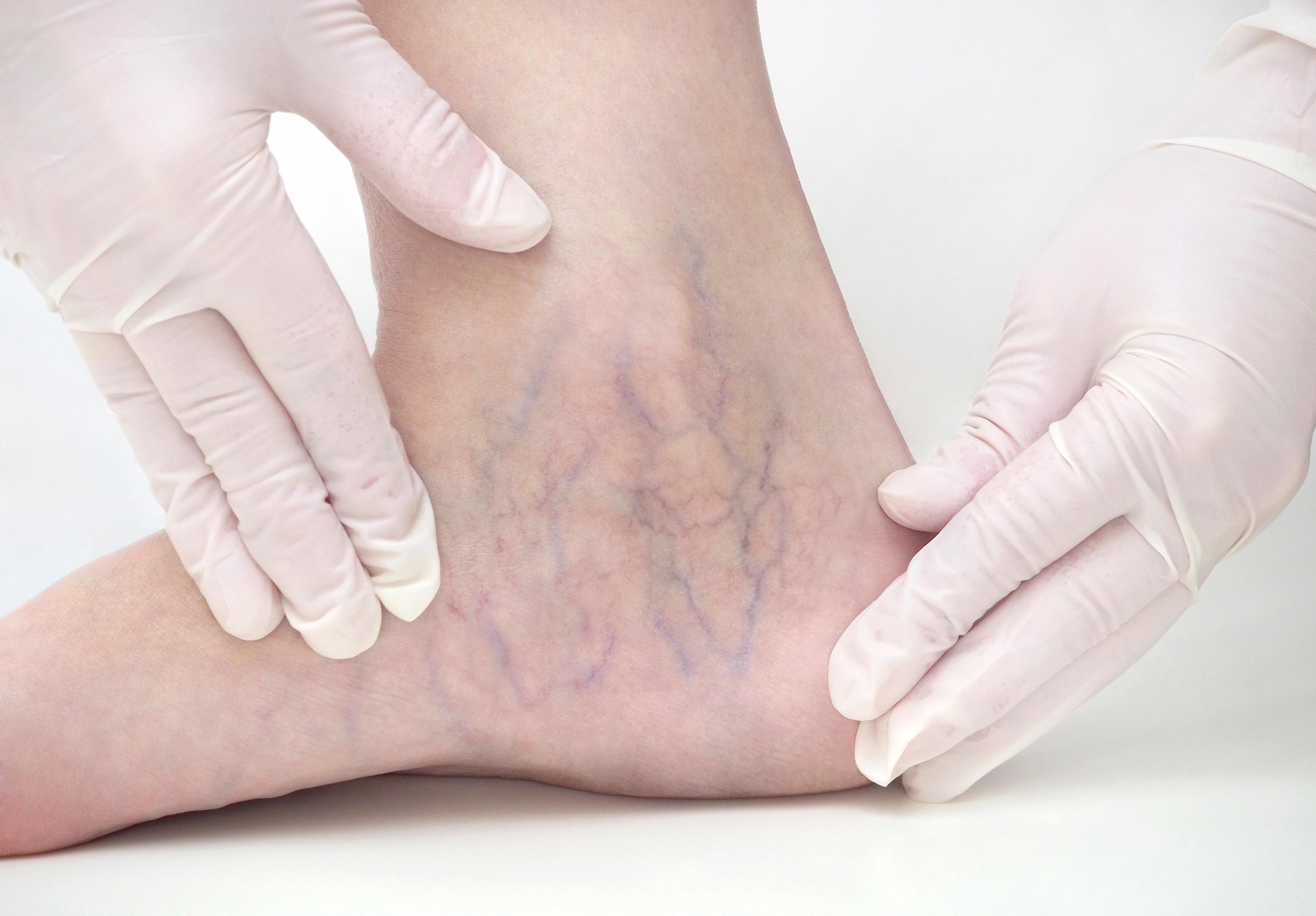 foot vein
