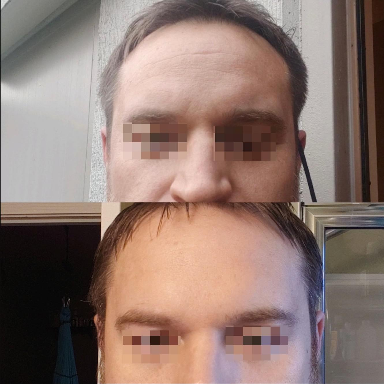 Forehead before & after