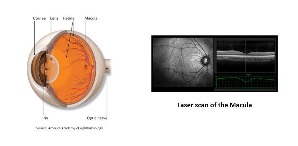 Laser Scan Of Macula