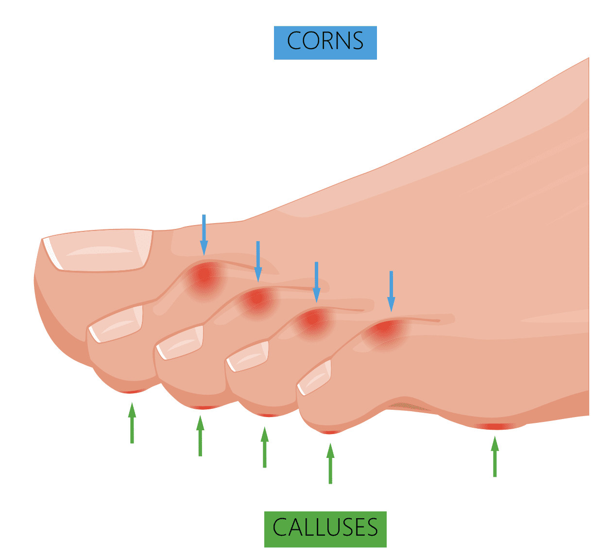 Corns & Calluses treatment NYC