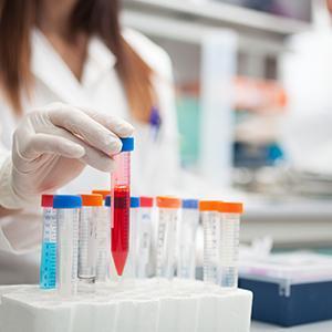 Test Tube - Clinical Trials