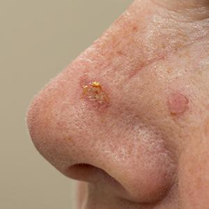 Nose with Keratosis