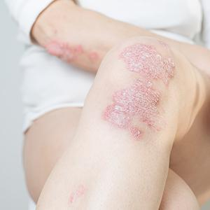 leg with psoriasis