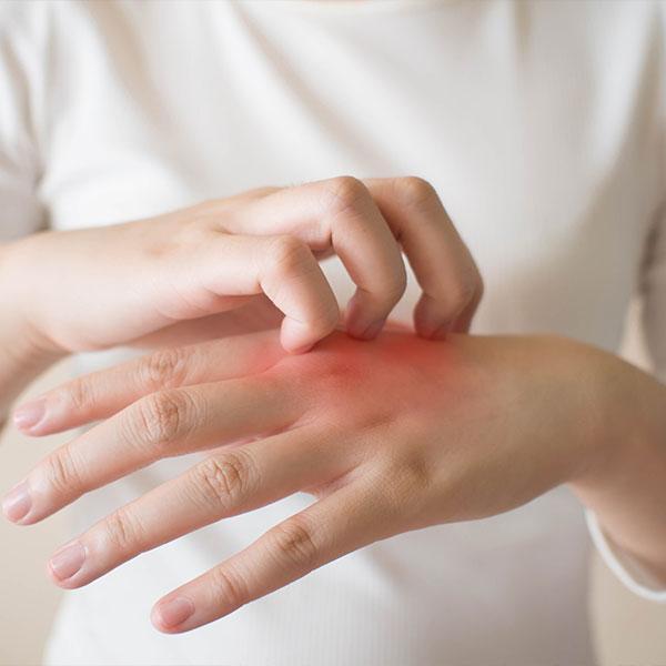 Eczema service image