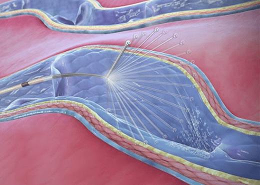 clarivein procedure