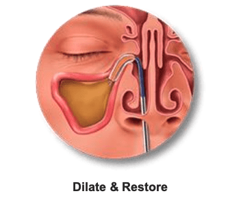 dilate & restore balloon dilation graphic