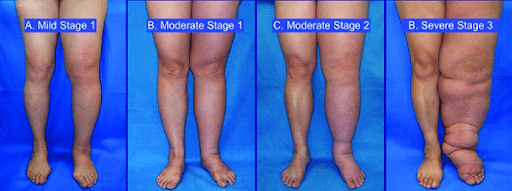 more stages of lymphatic buildup in legs