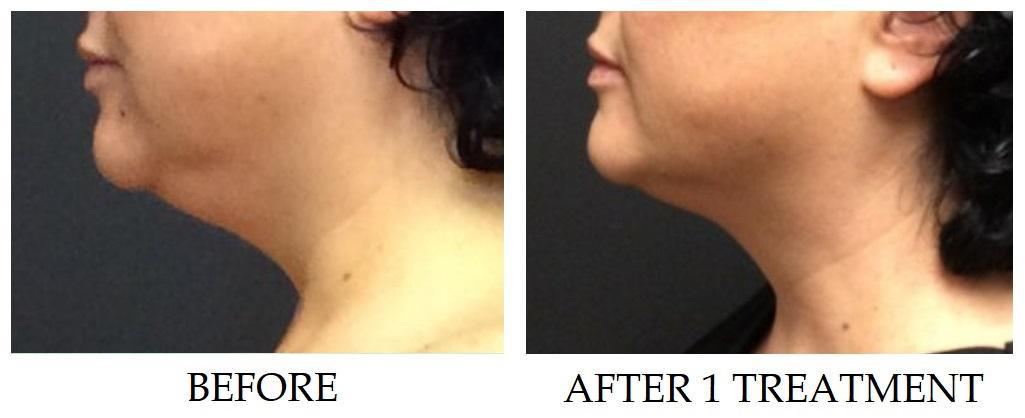Before/after Image