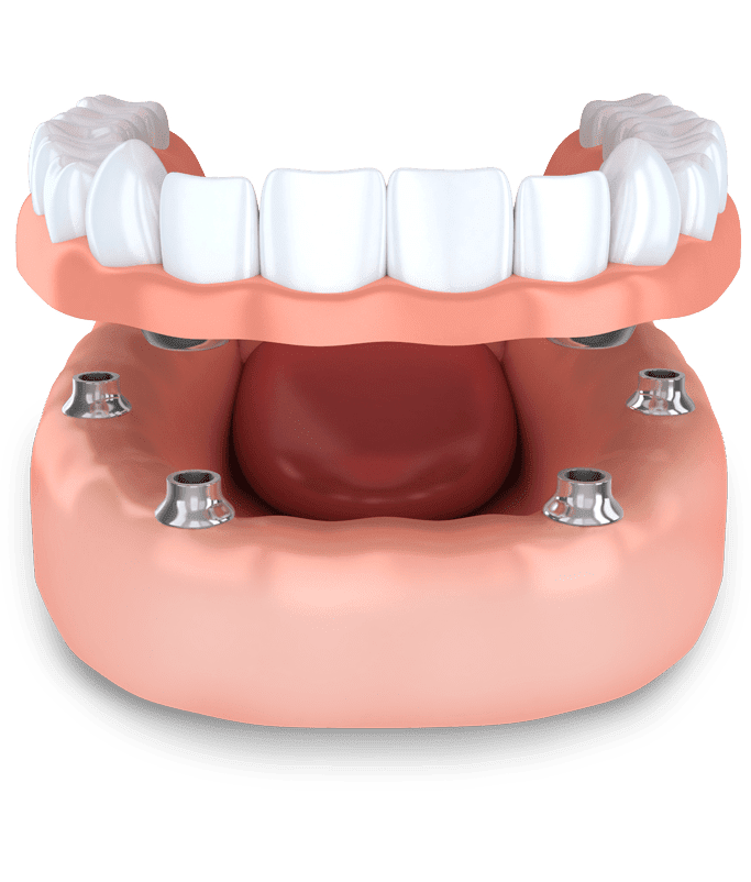 Diagram of implant supported dentures
