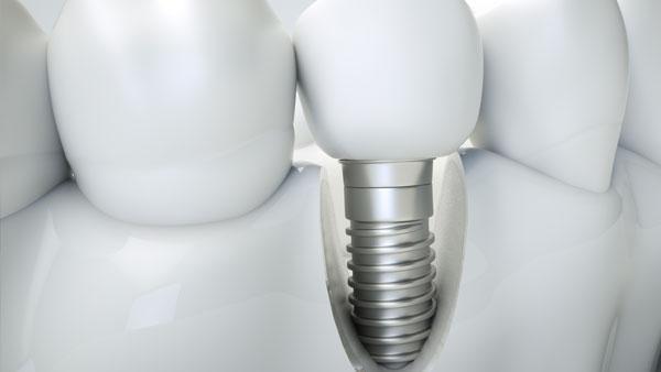 Dental implant visual