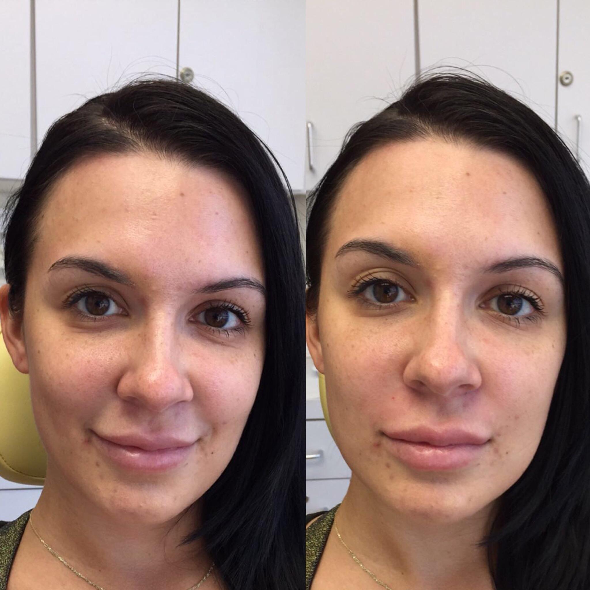 контуринг лица инъекциями фото до и после точнее проекция человеческий