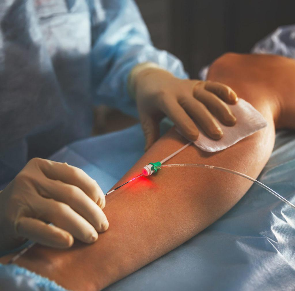 Doctor inserting IV into patient's leg
