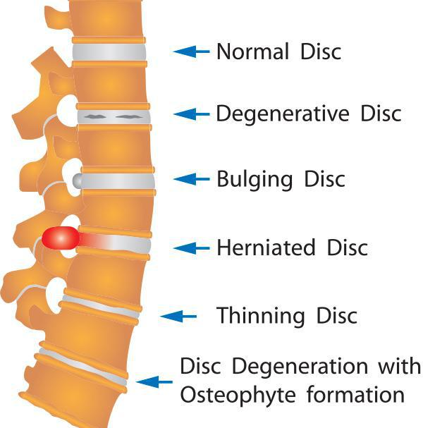 herniated disc service image