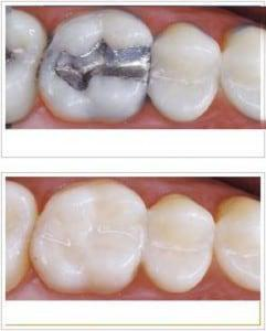 Metal-Free Fillings, Inlays, and Onlays