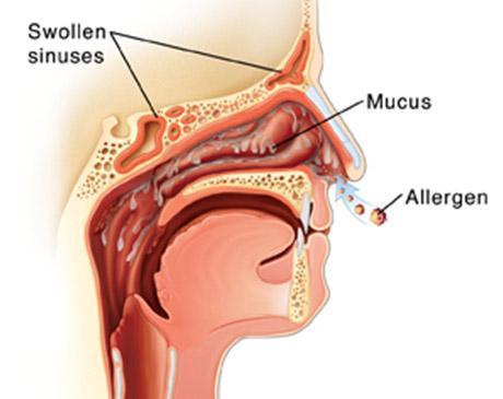 Allergies Image