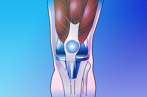 digital display of knee replacement