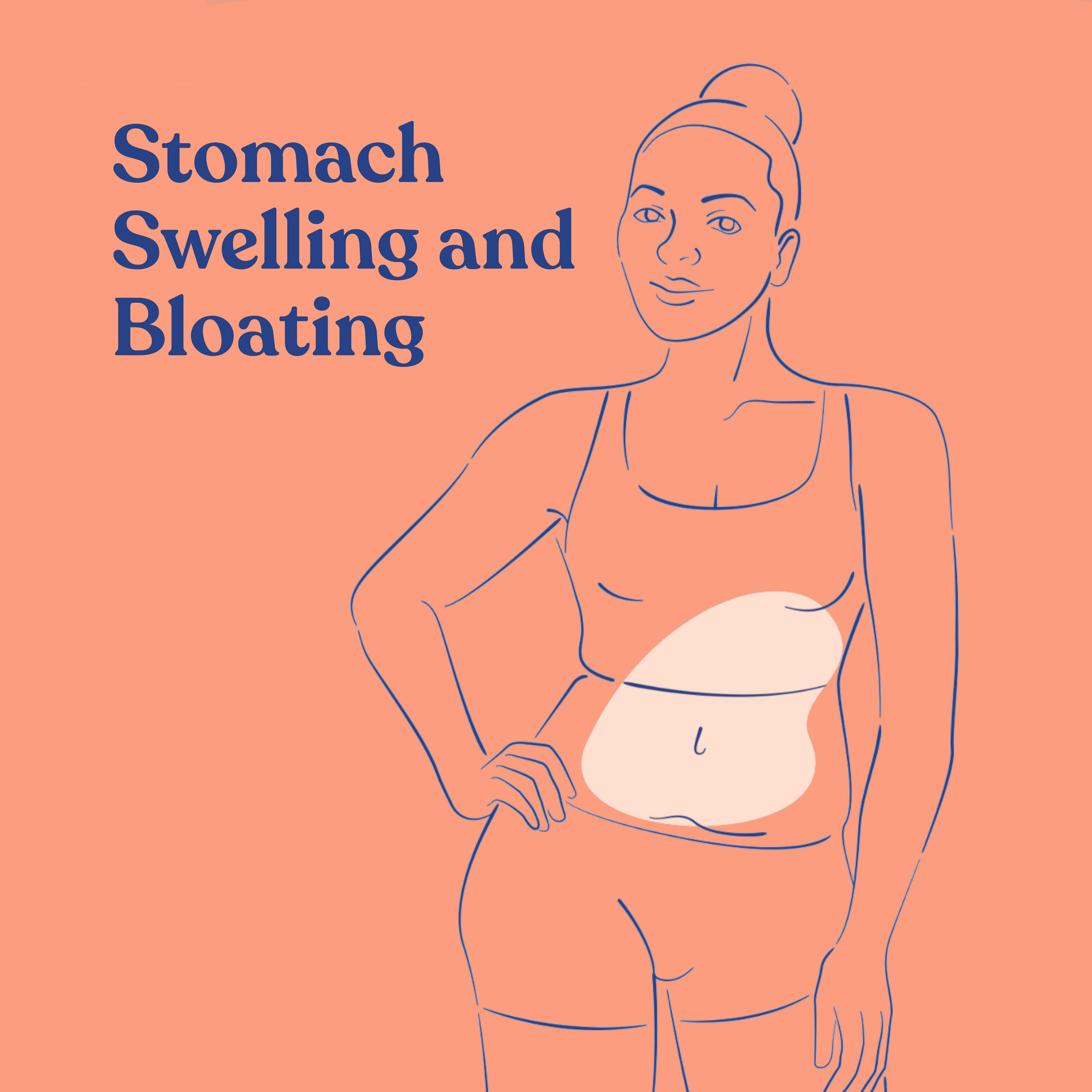 Stomach swelling and bloating, Symptoms treated by Acessa Procedure