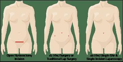 hysterectomy-incision-comparison-single-site