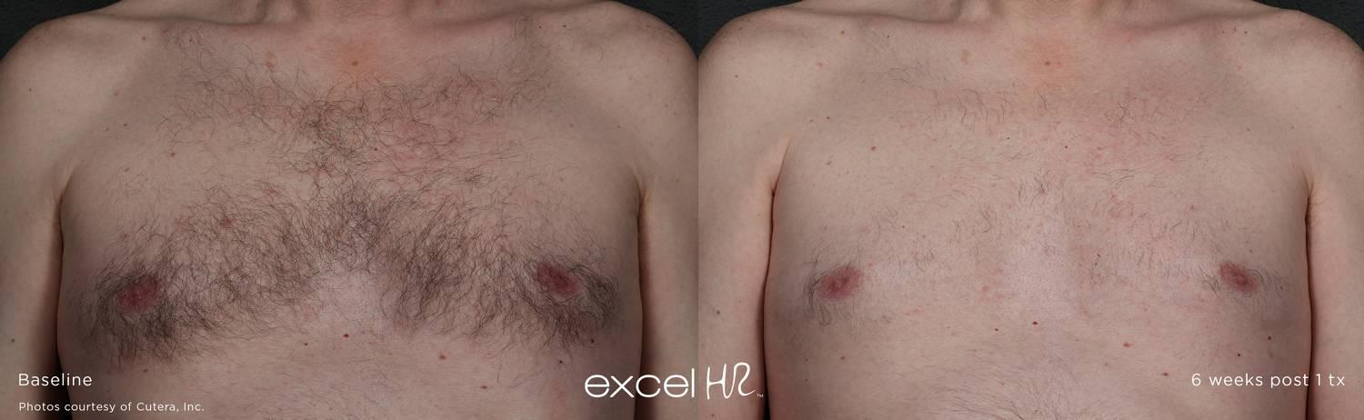 Excel HR Before and AFter