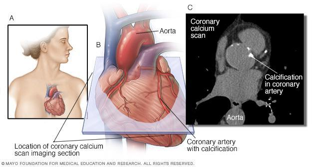 coronary graph
