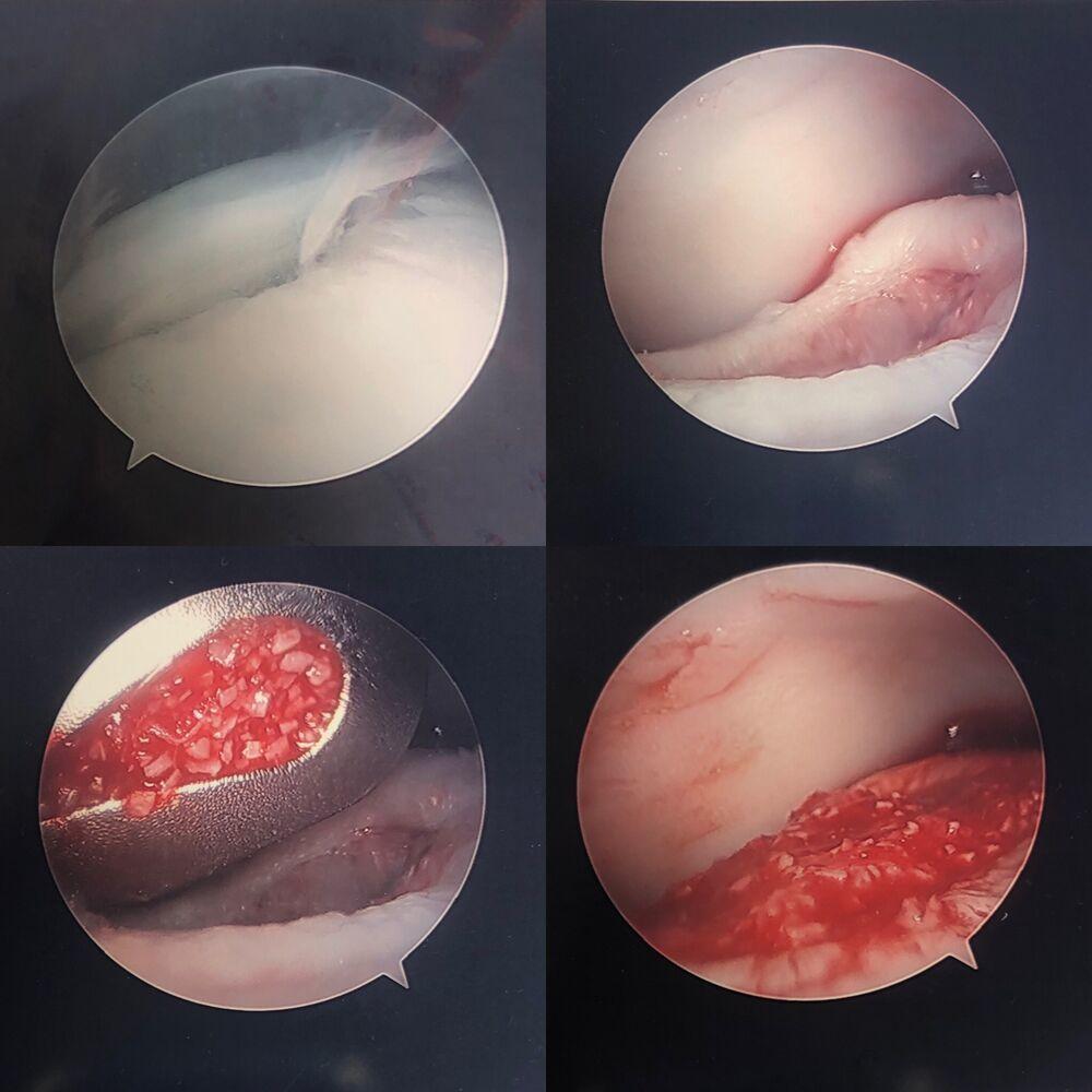 surgery image