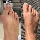 before and after foot