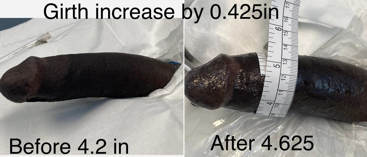 filler instant Penis and Augmentation