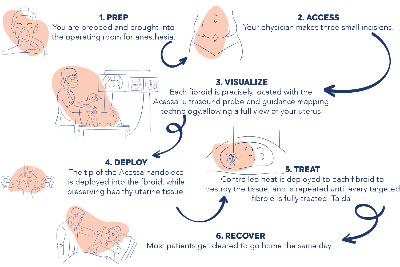 Steps Acessa Procedure