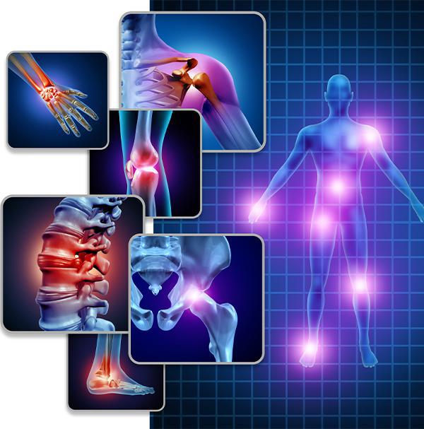 Fibromyalgia service image