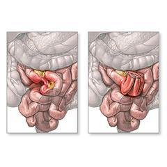 Image on left portrays diseased Colon prior to surgery. Image on the right after the Colon resection