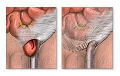 image of a hernia before and after repair