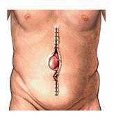 Image of an open incision with a hernia