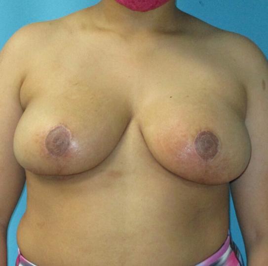 breast reducation