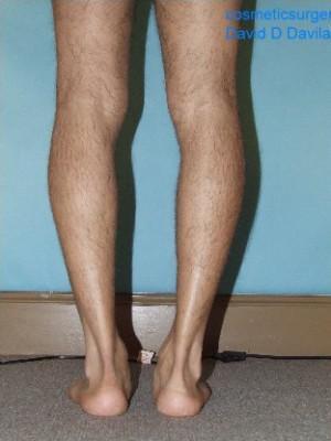 calf implant