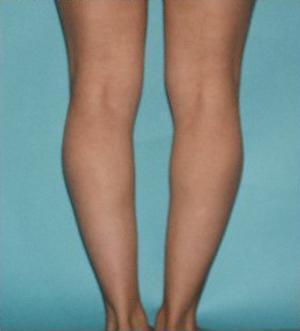 calf implants