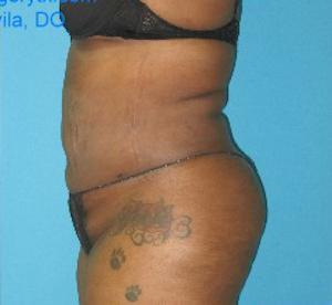 Liposuction of Houston Cosmetic Surgery Center