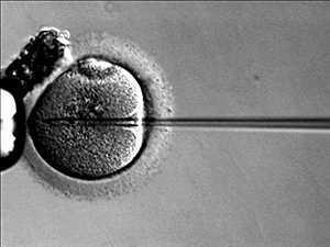 ICSI for Male Infertility