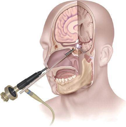 Endoscopic Brain Tumor Surgery