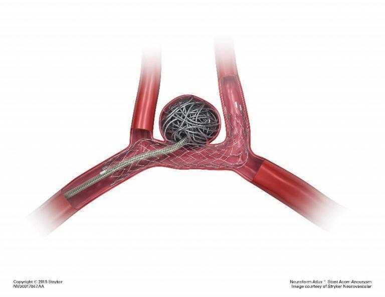 Endovascular Aneurysm Coiling