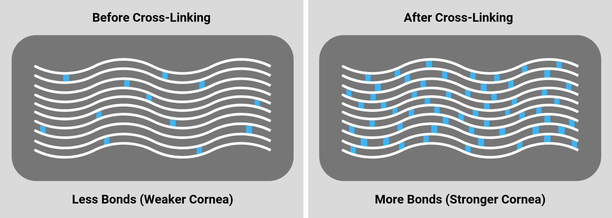 Cornea Image