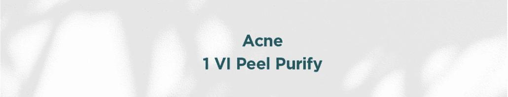 Acne Veel Peel
