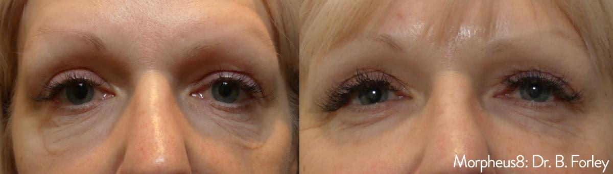 Before and After of Morpheus8 Treatment