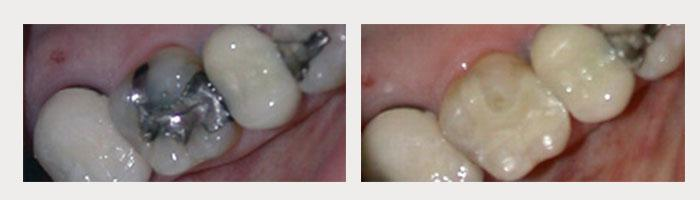 Tooth Colored Fillings 2