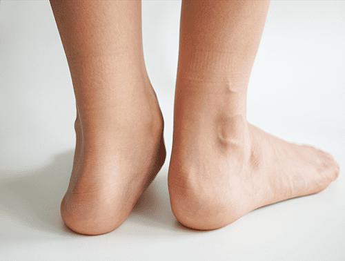 Foot and Ankle Deformities