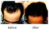 Lower Dosage to reduce Baldness