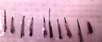 Three hair follicular unit micrografts