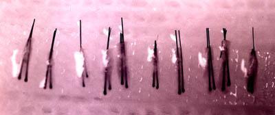 Two hair follicular unit micrografts