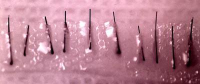 Single hair micrografts