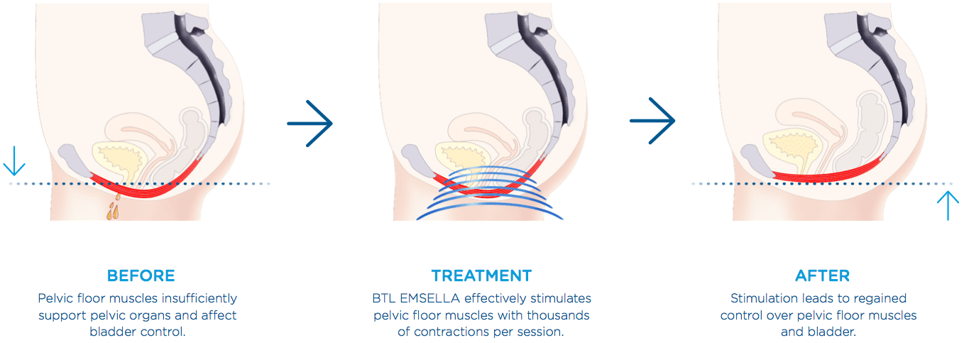 what the pelvic floor looks like before and after treatment